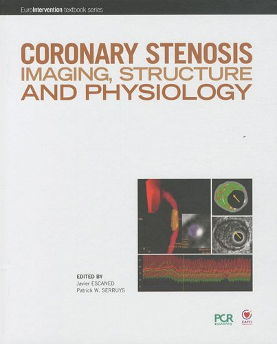 9782913628564: Coronary stenosis imaging, structure and physiology