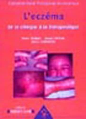 9782914738347: L'eczéma : De la clinique à la thérapeutique