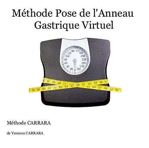 9782954617404: Méthode Pose de l'Anneau Gastrique Virtuel