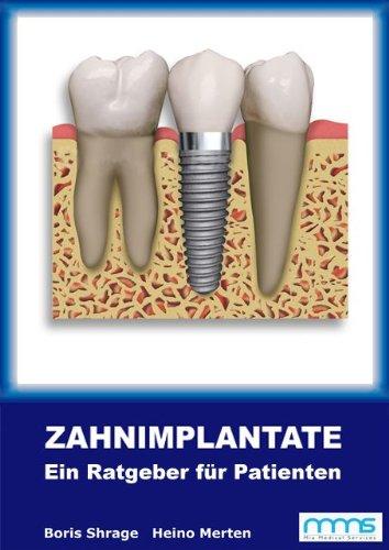 9783000327292: Zahnimplantate: Ratgeber für Patienten