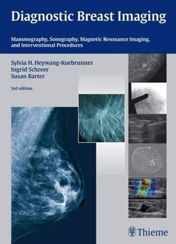 9783131028938: Diagnostic Breast Imaging: Mammography, Sonography, MRI and Interventional Procedures