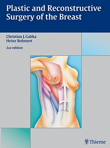 9783131035721: Plastic and Reconstrutive Surgery of the Breast: A Surgical Atlas