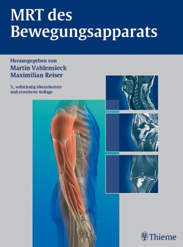 MRT des Bewegungsapparats 59 Tabellen / hrsg.: Martin (Hrsg.)Baur, Andrea