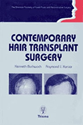 9783131037817: Contemporary Hair Transplant Surgery