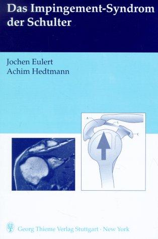 9783131075314: Das Impingement-Syndrom der Schulter