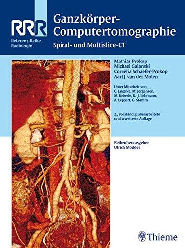 9783131089120: Ganzkörper-Computertomographie: Spiral- und Multislice-CT