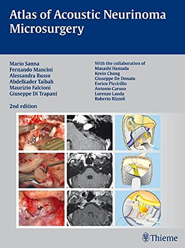 9783131102829: Atlas of Acoustic Neurinoma Microsurgery: . Zus.-Arb.: Mario Sanna Essam Saleh, Benedict Panizza, Alexandra Russo, Abdel TaibahWith the collaboration of Refik Caylan, Fernando Mancini ...