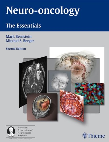 9783131163325: Neuro-oncology: The Essentials