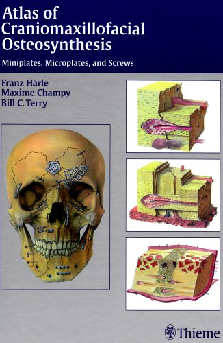 9783131164919: Atlas of Craniomaxillofacial Osteosynthesis: Micro-miniplates and Screws