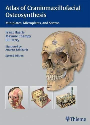 9783131164926: Atlas of Craniomaxillofacial Osteosynthesis: Microplates, Miniplates,and Screws