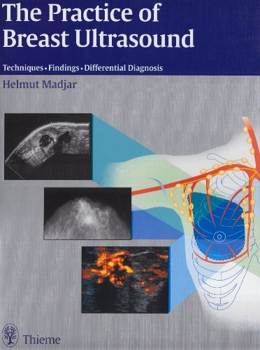 9783131243416: The Practice of Breast Ultrasound
