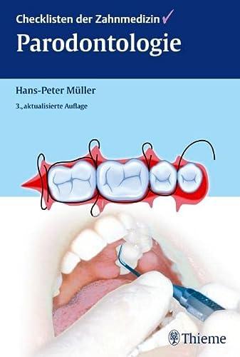 Checklisten der Zahnmedizin Parodontologie: Hans-Peter Müller