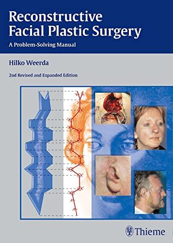 9783131296429: Reconstructive Facial Plastic Surgery: A Problem-Solving Manual