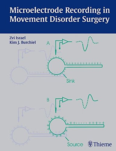 9783131300416: Microelectrode Recording in Movement Disorder Surgery