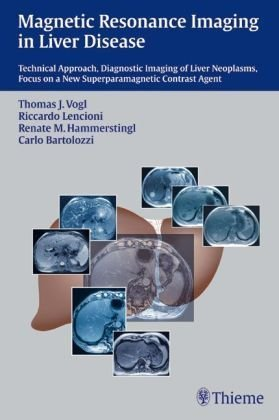 9783131331915: Magnetic Resonance Imaging in Liver Disease