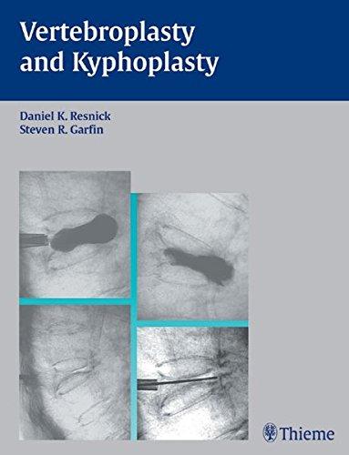 9783131353412: Vertebroplasty and Kyphoplasty