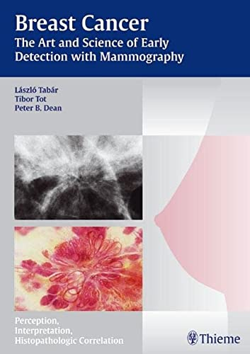 9783131353719: Breast Cancer - The Art and Science of Early Detection with Mammography: Perception, Interpretation, Histopathologic Correlation: Pathology, Patterns and Perception (Tabar Mammo)