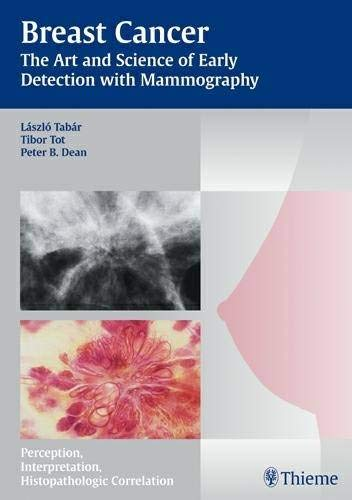 9783131353719: Breast Cancer: The Art and Science of Early Detection with Mammography (Tabar Mammo)