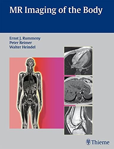 9783131358417: MR Imaging of the Body