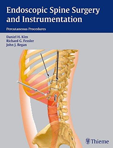 Endoscopic Spine Surgery and Instrumentation: Daniel H. Kim