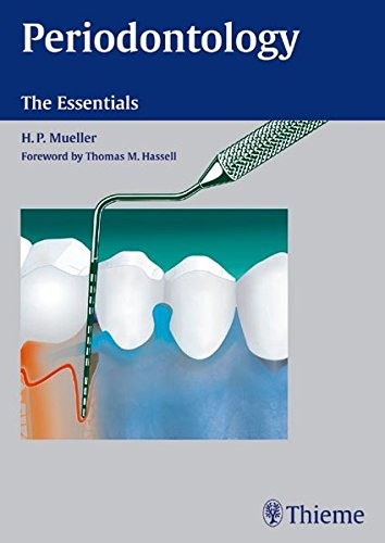 9783131383716: Periodontology: The Essentials