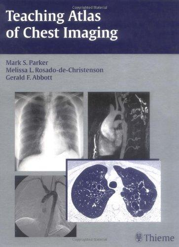 9783131390219: Teaching Atlas of Chest Imaging