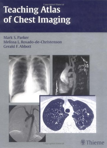 9783131390219: Teaching Atlas of Chest Imaging