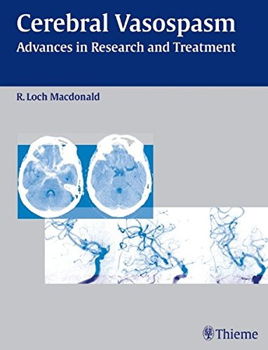 9783131400611: Cerebral Vasospasm: Advances in Research and Treatment