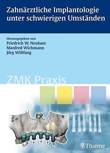 Zahnärztliche Implantologie unter schwierigen Umständen (Reihe, ZMK