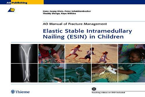 9783131433312: Elastic Stable Intramedullary Nailing (ESIN) in Children (AO-Publishing)