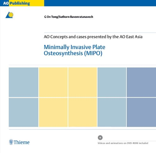9783131433916: Minimally Invasive Plate Ostheosynthesis (MIPO): Concepts and cases presented by the AO East Asia (AO-Publishing)