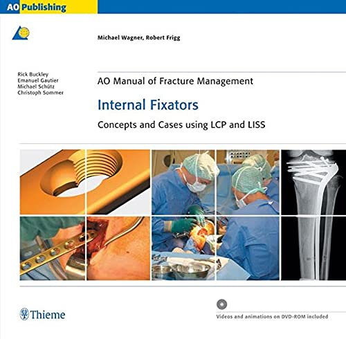 9783131435514: AO Manual of Fracture Management: Internal Fixators: Concepts and Cases using LCP/LISS