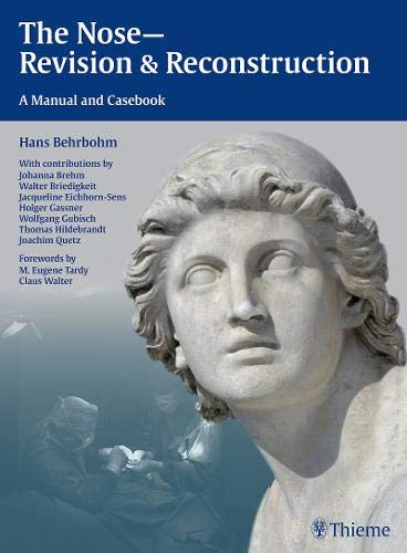 9783131435910: The Nose - Revision and Reconstruction: A Manual and Casebook