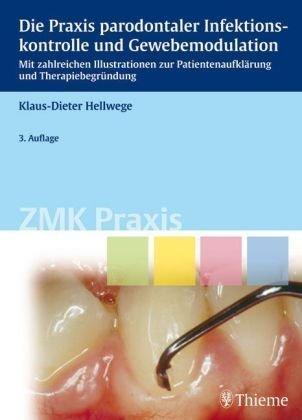 9783131444431: Die Praxis paradontaler Infektionskontrolle und Gewebemodulation: Mit zahlreichen Illustrationen zur Patientenaufklärung und Therapiebegründung