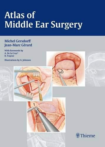 9783131450418: Atlas of Middle Ear Surgery