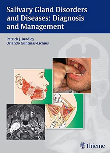 9783131464910: Salivary Gland Disorders and Diseases:: Diagnosis and Management