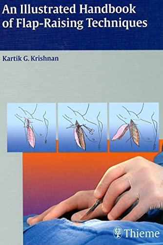 An Illustrated Handbook Of Flap-Raising Techniques: Krishnan, Kartik G.,
