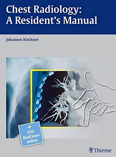 9783131538710: Chest Radiology: A Resident's Manual