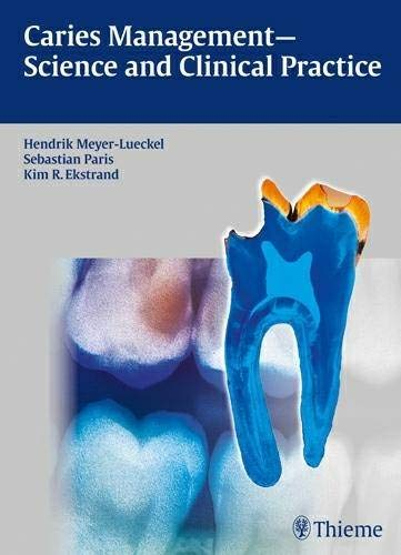 9783131547118: Caries Management - Science and Clinical Practice