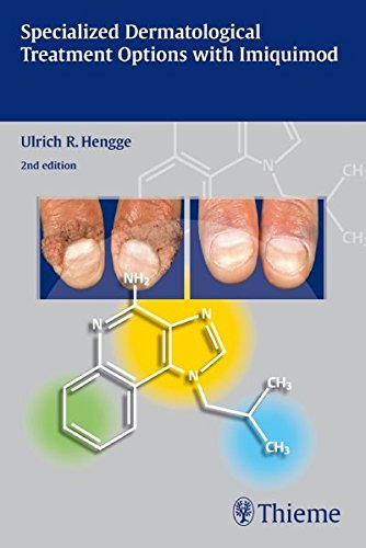 Specialized Dermatological Treatment Optinos with Imiquimod: Hengge, Ulrich R.