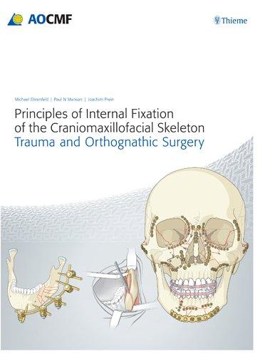Principles of Internal Fixation of the Craniomaxillofacial: Manson, Paul N.;