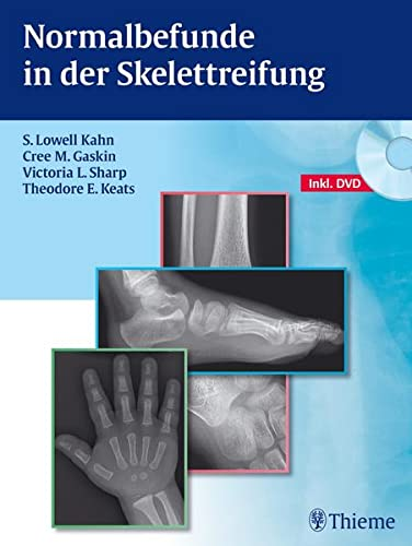 Normalbefunde in der Skelettreifung: S. Lowell Kahn