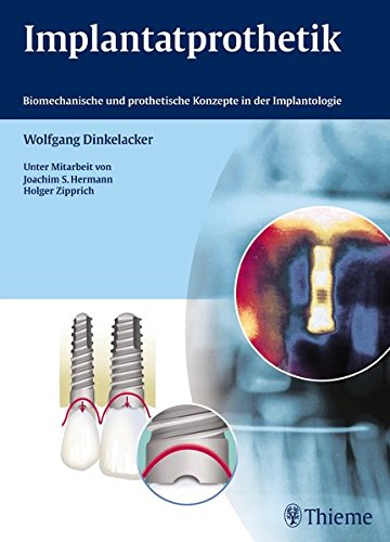 9783131737915: Implantatprothetik: Biomechanische und prothetische Konzepte in der Implantologie