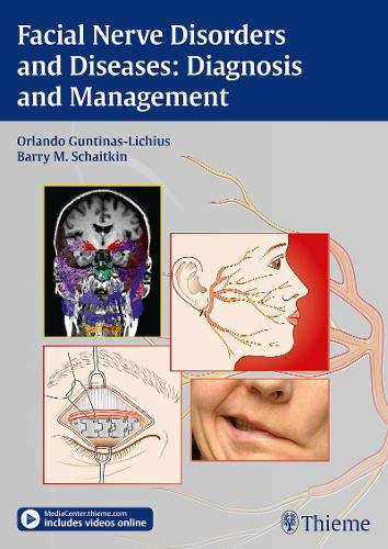 9783131751812: Facial Nerve Disorders and Diseases: Diagnosis and Management
