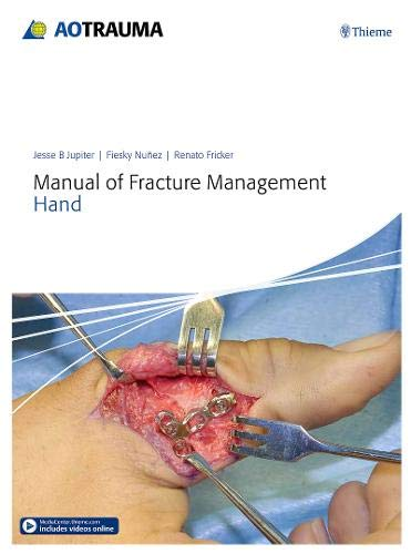 9783132215818: Manual of Fracture Management - Hand