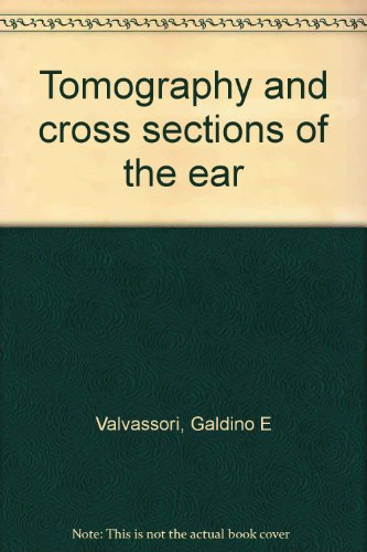 Tomography and Cross Sections of the Ear: Valvassori, Galdino E.;Buckingham, Richard A.
