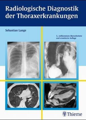 9783136893012: Radiologische Diagnostik der Lungenerkrankungen
