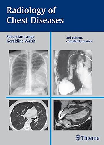 9783137407034: Radiology of Chest Diseases