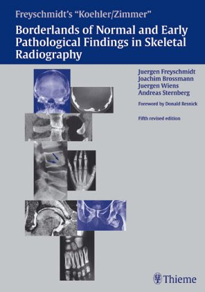 9783137841043: Borderlands of the Normal and Early Pathologic Findings in Skeletal Radiography