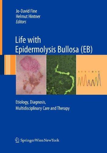 9783211102145: Life with Epidermolysis Bullosa (Eb)
